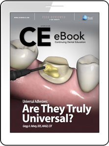 Universal Adhesives: Are They Truly Universal? eBook Thumbnail