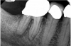 (1.) A 74-year-old male presented with an acute apical abscess associated with tooth No. 30. The pre-operative periapical x-ray revealed evidence of apical pathology.